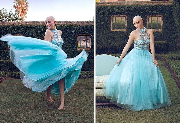 Эта смелая девушка снялась в красивой фотосессии. «Рак не мешает мне быть принцессой!»