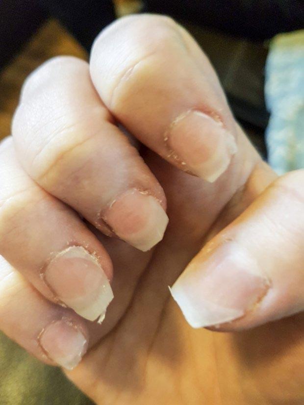 Вот во что превратились ногти этой женщины, когда она поссорилась со своей маникюрщицей