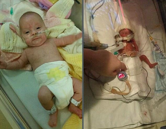 Крошка родилась в 27 недель. Я не могла перестать плакать, глядя на то, какая она маленькая.
