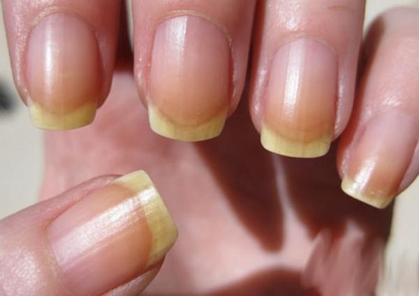 Важные вещи, которые говорят ногти о вашем здоровье 1118