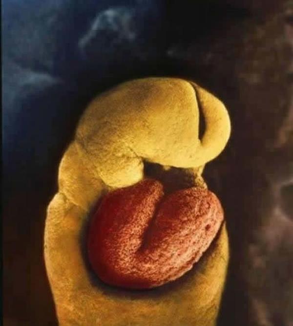 25 ошеломляющих снимков, показывающих что происходит внутри мамы во время беременности