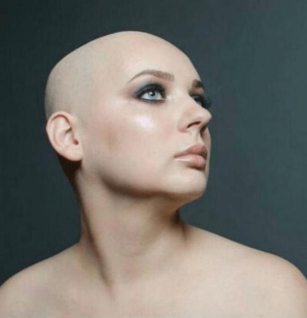 «Как хочется жить!» Скончалась 24-летняя Виталина Афанасова, которая стала моделью из-за рака