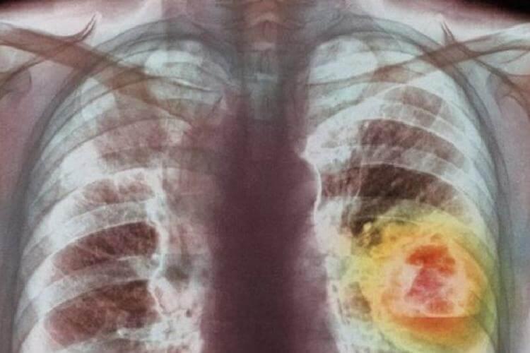 Онколог из Петербурга: «Я 18 часов подряд удалял метастазы из легкого 17-летней девушки…»
