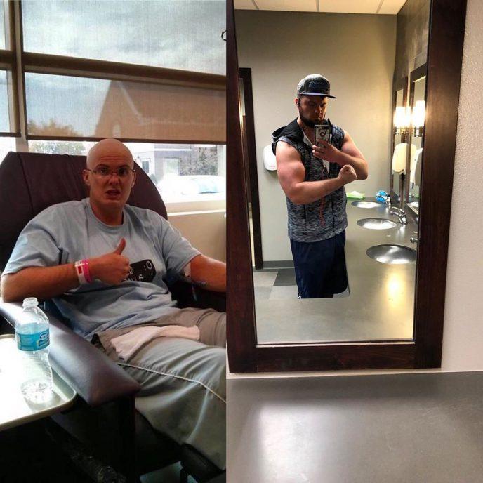 Душещипательные фотографии людей, которые смогли победить рак