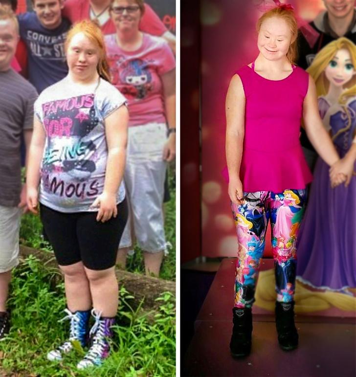22-летняя модель Мадлен Стюарт стала первой моделью с синдромом Дауна