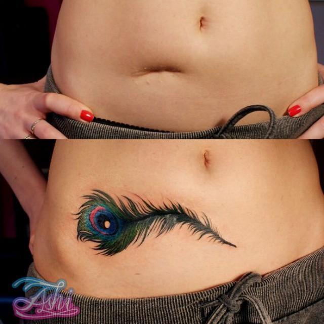 22 татуировки, которые переделали изъяны кожи в особенность тела